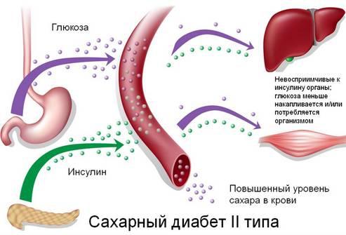 Уровень колебания сахара в крови в норме
